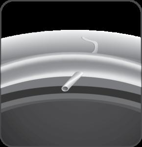 XEN Microstent Example